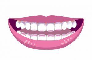 Ci ダブルプラークチェッカーで歯を染色したイラスト